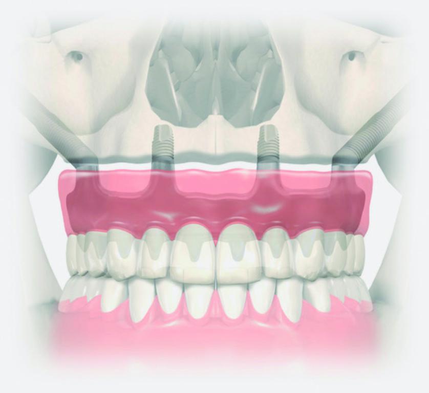 mini f Zigomatics02©Ilerdent - Ilerdent: implantologia i regeneració òssia